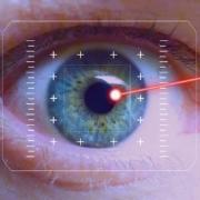 cataratta con il laser - CAMO - Centro Ambrosiano Oftalmico